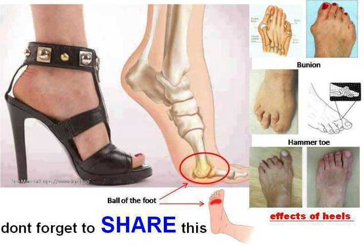 Effects of high heel shoes