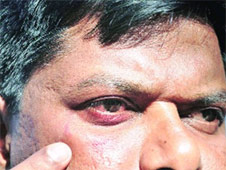 Patole was punched repeatedly on his face