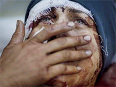 Tragedy, injury and privation are devastating lives in Aleppo